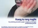 Huwag magtiis/ Huwag mag pabaya/ Huwag mo na pabayaan